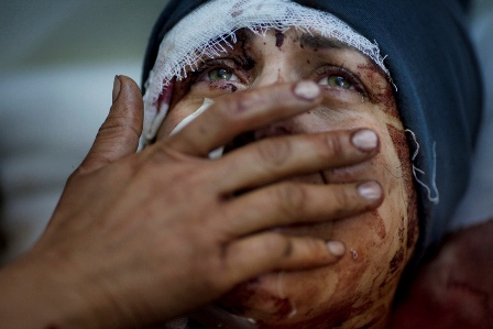 A woman named Aida cries as she recovers from severe injuries after the Syrian army shelled her house in Idlib, northern Syria, March 10, 2012. Aida's husband and two children were killed in the attack.   Photo by Rodrigo Abd